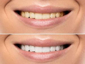 Professional Teeth Whitening
